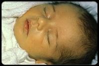 مرض الصفراء عند حديثي الولادة